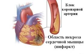Влияние мототерапии на психическое здоровье людей, которые перенесли инфаркт миокарда