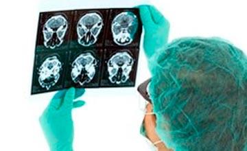 Основные способы профилактики старения мозга