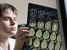 Творчество спасет от болезни Паркинсона