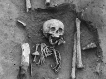 Ученые нашли самого древнего заболевшего синдромом Дауна