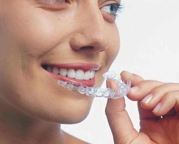Хотите исправить прикус? Пластинки на зубы помогут!