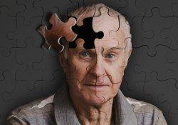 Люди с определенной группой крови чаще страдают старческим склерозом