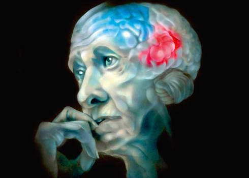 Обнаружено химическое соединение противостоящее болезни Альцгеймера
