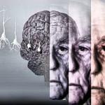 Обнаружены гены которые отвечают за болезнь Альцгеймера