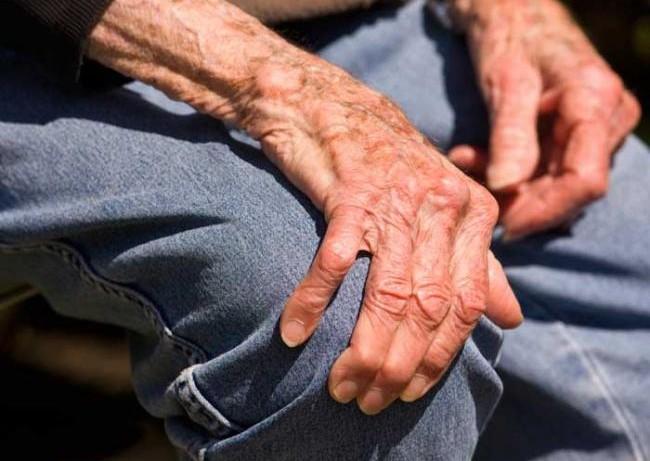 Пациенты, склонные к развитию болезнью Паркинсона, бросали курить значительно легче