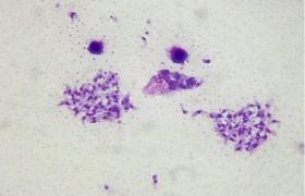 Токсоплазмоз может вызвать шизофрению