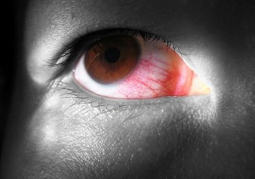 Минздрав планирует внести глазные капли, которые пользуются популярностью у наркоманов, в перечень лекарств, подлежащих учету