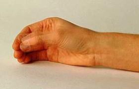 Создан новый тест для диагностики болезни Паркинсона