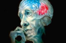 Дегенерация белого вещества в мозге может оказаться ранним маркером определенных типов болезни Альцгеймера