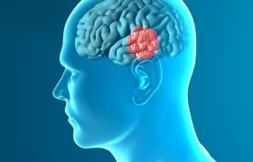 FDA одобрило к применению мозговой стимулятор для пациентов, страдающих от болезни Паркинсона