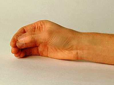 Одной из причин развития болезни Паркинсона является сырость