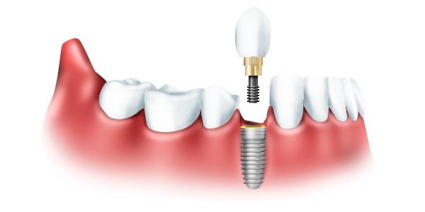 Новое протезирование зубов. Как сделать хорошие зубы?