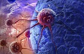Противораковый препарат сможет вылечить болезнь Альцгеймера