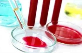 Для диагностики слабоумия будут использовать анализ крови