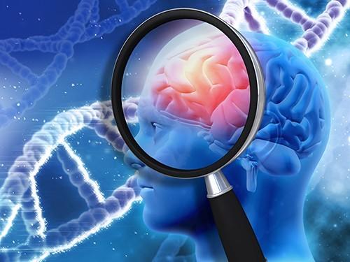Группа ученых выяснила, как разрушаются синапсы между нейронами головного мозга при болезни Альцгеймера