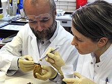 Ученые выяснили причины ухудшения памяти при эпилепсии