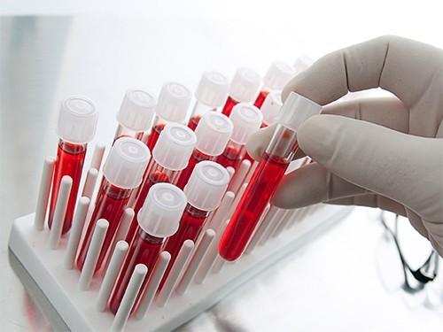 Анализ крови поможет выявить болезнь Паркинсона
