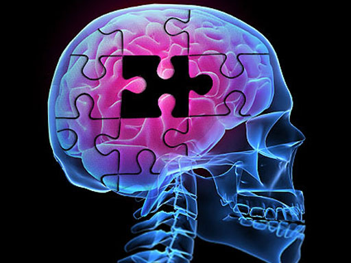 Ученые создали препарат для лечения болезни Альцгеймера