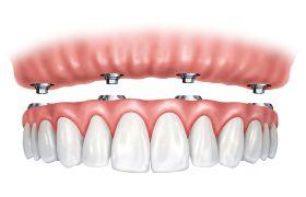 Несъемное протезирование на имплантатах при полном отсутствии зубов