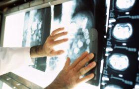 Лечение в онкологических клиниках Израиля