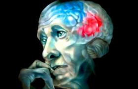Экспериментальный препарат замедлил развитие болезни Альцгеймера в ходе клинического исследования