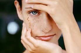 Как избавиться от проблем с кожей? Борьба с пигментацией