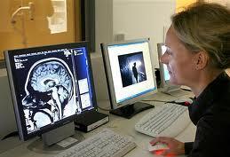 Сканирование мозга предсказывает шизофрению