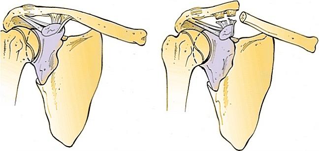 Особенности перелома ключицы. Что нужно знать каждому о переломо-вывихе акромиального конца ключицы