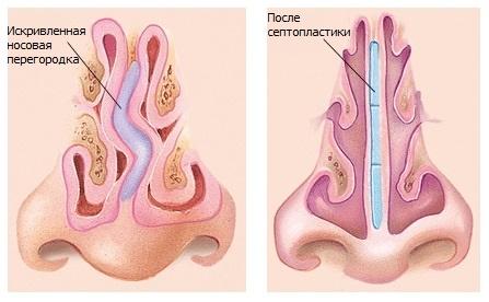 Возможности исправления перегородок носа, для правильного функционального использования дыхательных путей – это септопластика, предложенная от клиники «ДЕКА»