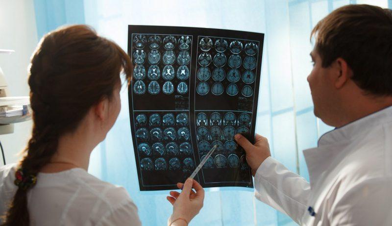 Противоэпилептические препараты увеличивают риск врожденных пороков развития