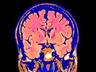 Исследователи в шаге от разработки нового метода диагностики деменции