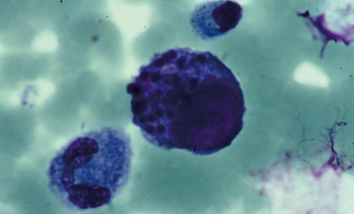 Цитомегаловирус связали с болезнью Альцгеймера