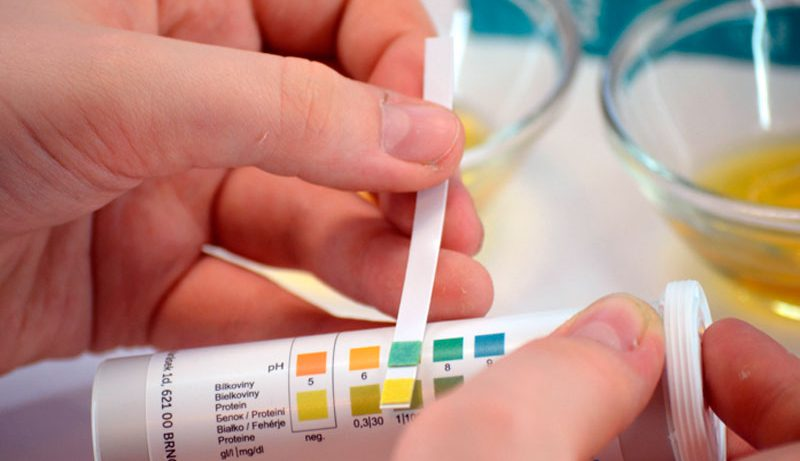 Протеинурия и когнитивные нарушения: новые данные