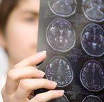 Сканирование мозга подскажет, у кого разовьется стрессовое расстройство