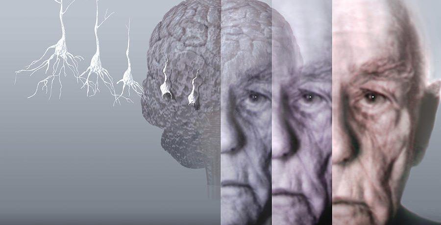 Исследователям удалось узнать больше о болезни Альцгеймера
