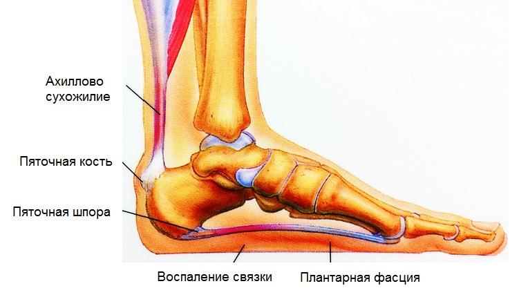 Народные способы лечения пяточных шпор, мозолей и потливости ног
