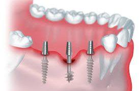 Клиника ЕВРОДЕНТ: имплантация зубов и иные стоматологические услуги от опытных врачей по лояльным ценам