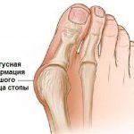 Причины возникновения и методы лечения деформации стопы