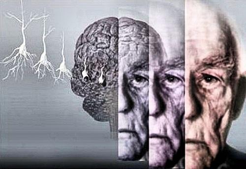 Опасности старости – сосудистая деменция