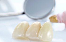 Современные коронки на зубы