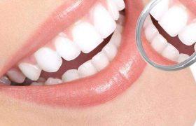 Как сделать свою улыбку белоснежной