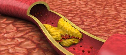 Причины атеросклероза. Лечение