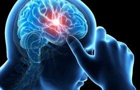 Транзиторная ишемическая атака – первый звонок к инсульту