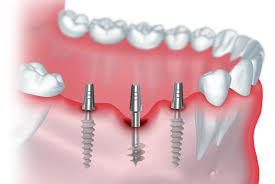Преимущества современных имплантов и показания к имплантации зубов