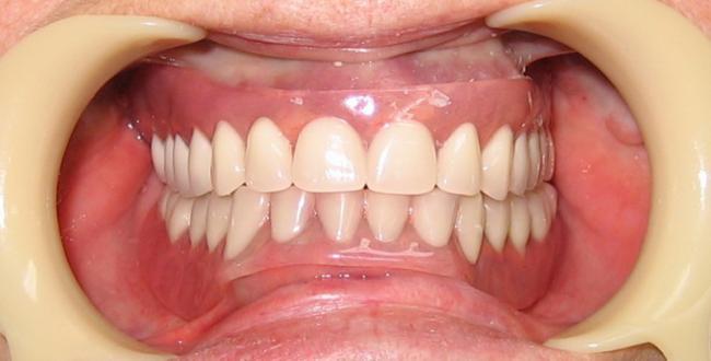 Типы съемных зубных протезов