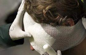 Травма головы может изменить характер