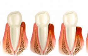 Зубная проблема – пародонтоз, причины возникновения, методы лечения