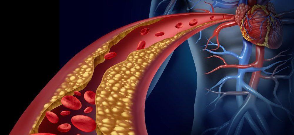 Высокие уровни холестерина ЛПВП могут понижать риск болезни Альцгеймера