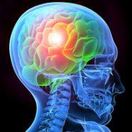 Пароксизмальные события: эпилепсия или синкопа?