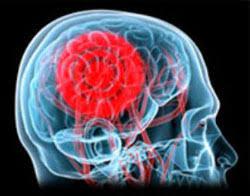 Ученые назвали склонных к опухолям мозга людей